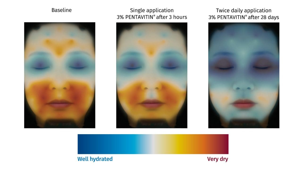 Hydration measurement on facial skin with color mapping technology of skincare moisturizing ingredient PENTAVITIN®