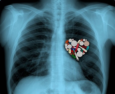 X-ray and medicine heart